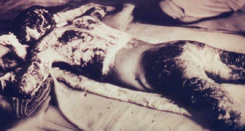 Hiroshima Atomic Bomb Museum: Individual Artifacts
